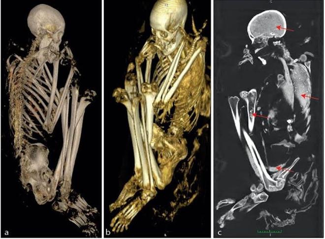 Phát hiện khảo cổ quái dị: Xét nghiệm ADN cho thấy xác ướp 3000 tuổi được chắp vá từ 6 di thể - Ảnh 3.