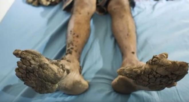 Người Cây - Căn bệnh kỳ quái cực hiếm, tàn phá đến mức người bệnh chỉ muốn chặt tay - Ảnh 6.