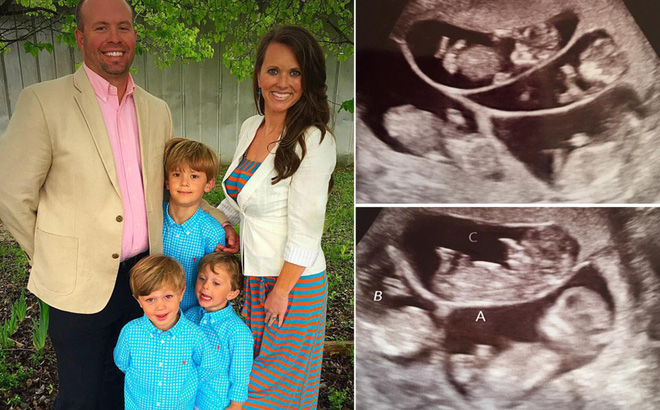 Có 3 con rồi vẫn muốn sinh thêm, cặp vợ chồng choáng váng khi nhìn vào màn hình siêu âm