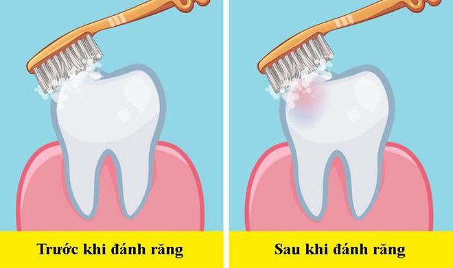Các nha sĩ trả lời câu hỏi dễ mà khó: Nên đánh răng trước hay sau bữa ăn sáng? - Ảnh 3.
