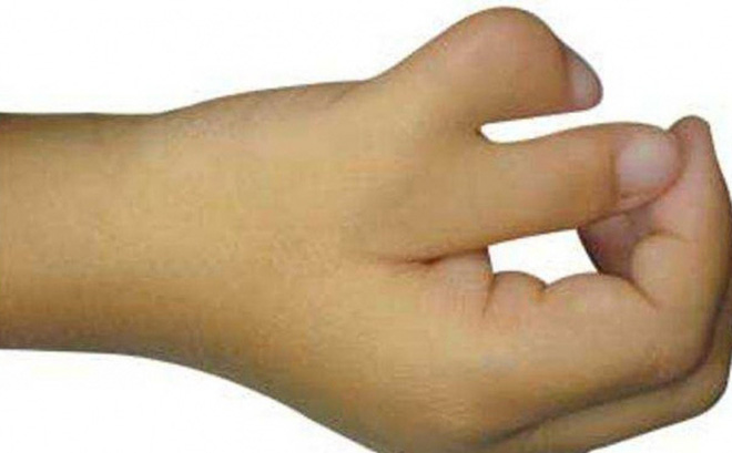 Làm gì khi có ngón tay thừa?