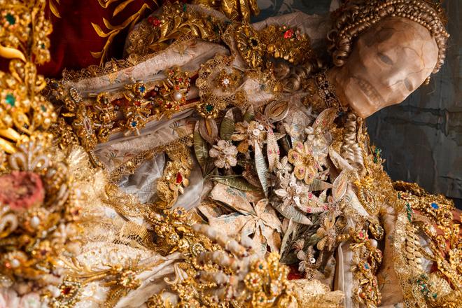 Bí ẩn về những bộ xương nạm châu báu - Ảnh 4.