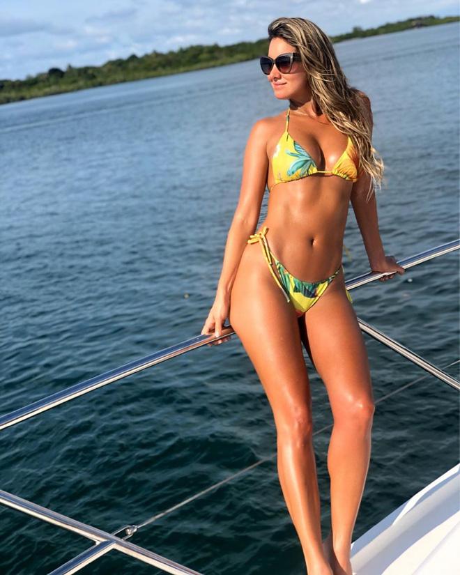 Hoa hậu Colombia buộc phải cưa chân trái: Tôi đã trải qua đau đớn tột cùng - Ảnh 4.