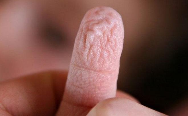 Phát hiện kỳ thú: Vì sao đầu ngón tay nhăn nheo khi ngâm vào nước?