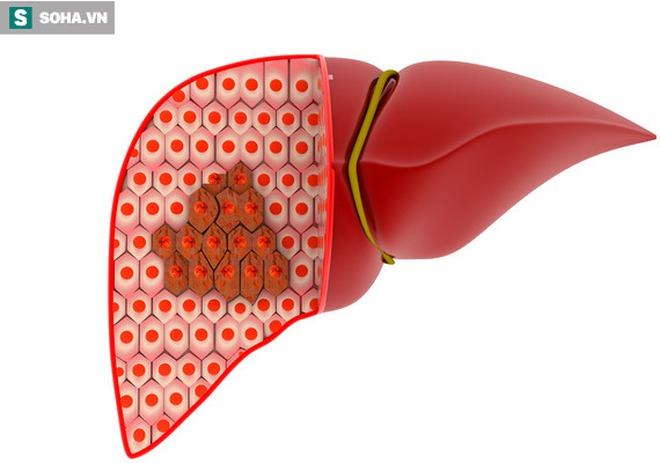 4 cách để phong tỏa tế bào ung thư gan, đừng để cứ hễ phát hiện là đã ở giai đoạn muộn - Ảnh 1.