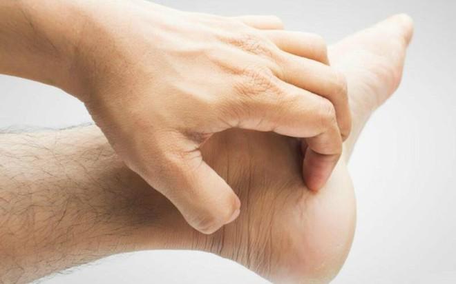 10 nguyên nhân gây ngứa chân và cách điều trị - Ảnh 5.
