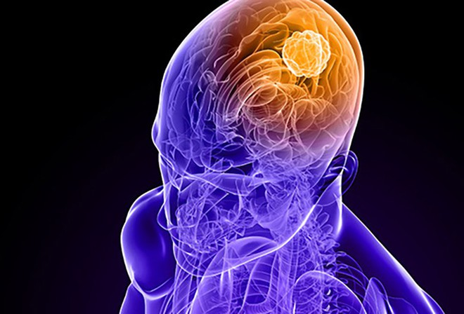Ung thư não là căn bệnh như thế nào? - Ảnh 1.