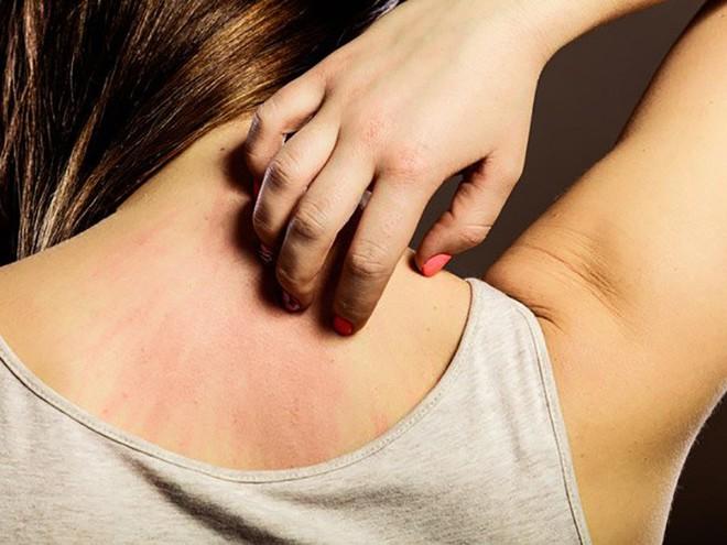Các triệu chứng của ung thư mà phần đông đều chủ quan bỏ qua - Ảnh 3.