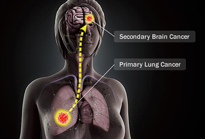 Ung thư não là căn bệnh như thế nào? - Ảnh 3.
