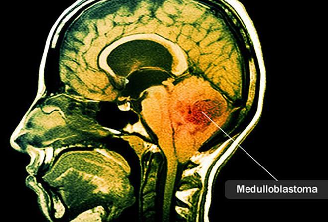 Ung thư não là căn bệnh như thế nào? - Ảnh 5.