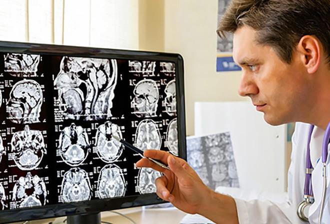Ung thư não là căn bệnh như thế nào? - Ảnh 6.