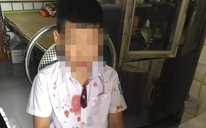 Phụ huynh vào trường đưa bé trai lớp 1 ra ngoài hành hung để giải quyết mâu thuẫn cho con