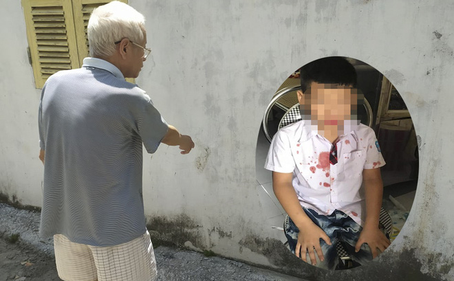 Mẹ bé trai lớp 1 bị hành hung: Mong muốn làm rõ động cơ, không yêu cầu bồi thường