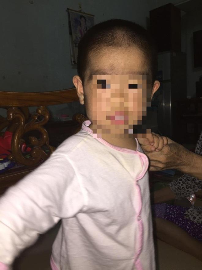 Người mọc toàn lông, bé gái 6 tuổi ở Vũng Tàu mắc bệnh hiếm gặp - Ảnh 1.