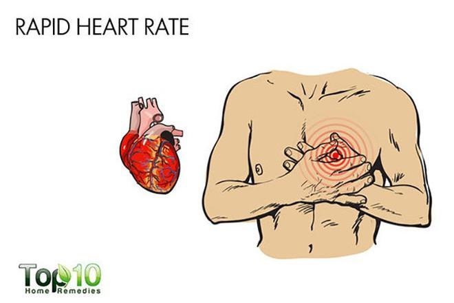 Những dấu hiệu và triệu chứng chính của huyết áp thấp - Ảnh 3.