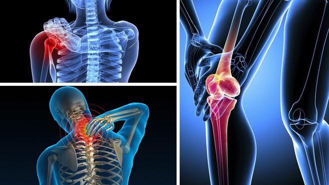 GS xương khớp: Sát thủ gây tàn tật số 1 - Đừng bỏ qua các dấu hiệu khi khớp kêu cứu - Ảnh 3.