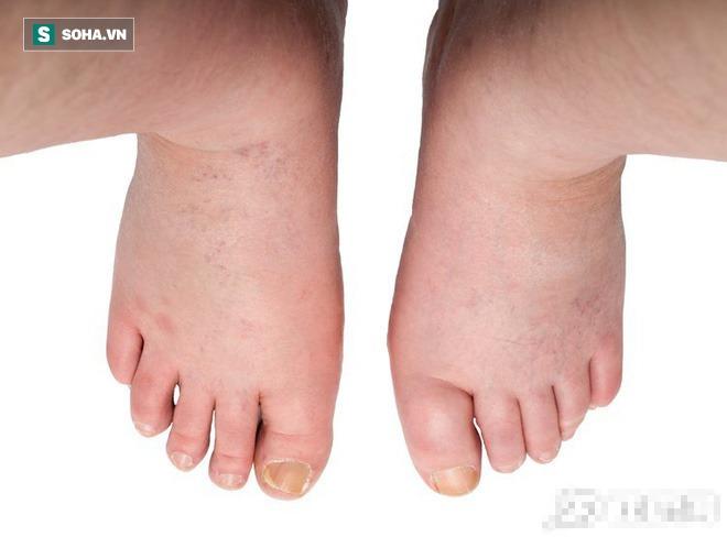 Nếu bị phù ở chân: Làm sao để biết đó là bệnh về mạch máu, bệnh thận hay bệnh khác? - Ảnh 1.