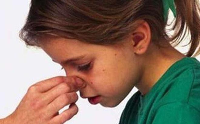 Chảy máu cam mà ngửa đầu ra sẽ viêm phổi?
