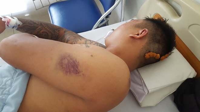 Người dân tố 3 thanh niên bị công an xã đánh nhập viện - Ảnh 1.