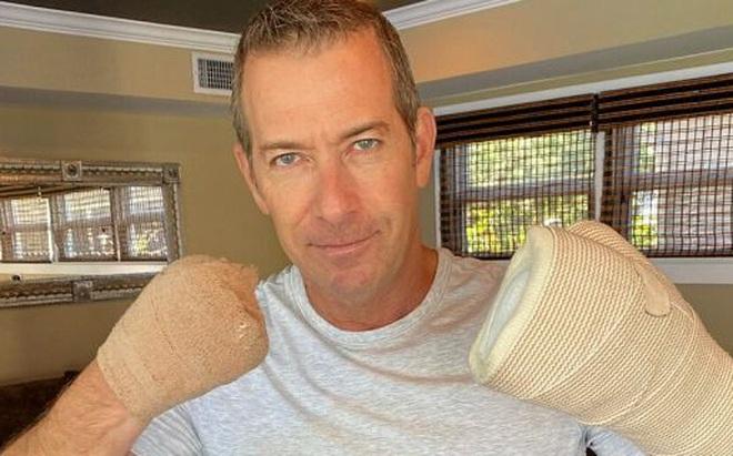 Bệnh nhân mắc Covid-19 ở Mỹ: Tôi không có ngón tay nữa, điều này có thể xảy ra với bạn!