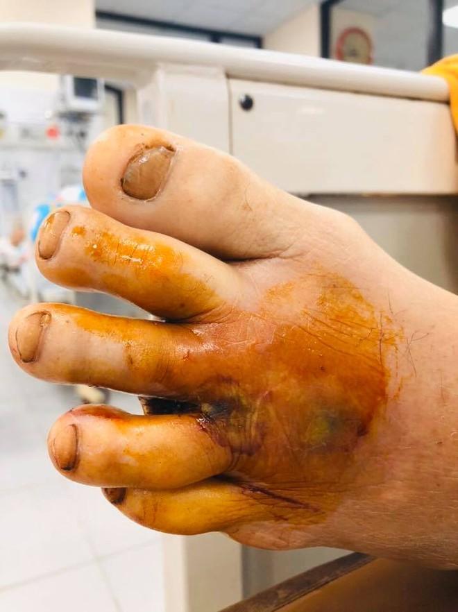 Lại thêm nạn nhân của vi khuẩn Whitmore: Hôn mê, suy đa tạng vì bị cọc tre đâm vào chân - Ảnh 1.