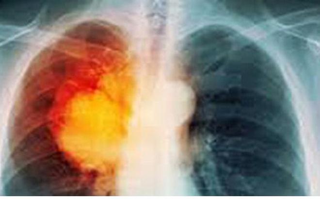 Siêu thực phẩm có thể làm sạch nicotine trong phổi