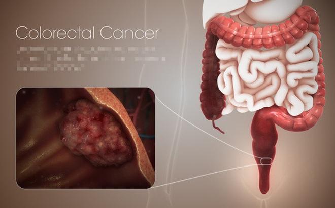 """Người có 3 đặc điểm này, cần cảnh giác với mầm ung thư đại trực tràng đang """"lớn dần"""""""