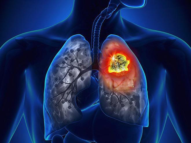 Bỏ viện về ăn rau thải độc và tập theo giáo phái lạ, bệnh nhân ung thư suy kiệt quay lại tìm bác sĩ - Ảnh 2.