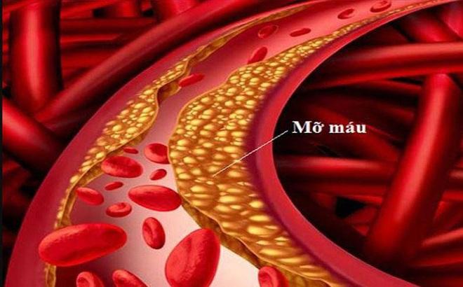 Sau khi uống rượu, nếu có 3 dấu hiệu này thì hãy cẩn thận với bệnh mỡ máu đang tiến triển