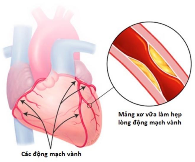 4 dấu hiệu bệnh tim mạch vành kêu cứu, đừng bỏ qua vì có thể cướp đi tính mạng - Ảnh 3.
