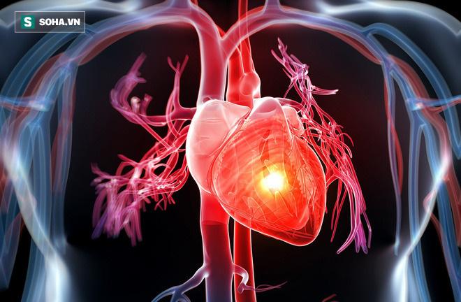 4 dấu hiệu bệnh tim mạch vành kêu cứu, đừng bỏ qua vì có thể cướp đi tính mạng - Ảnh 1.