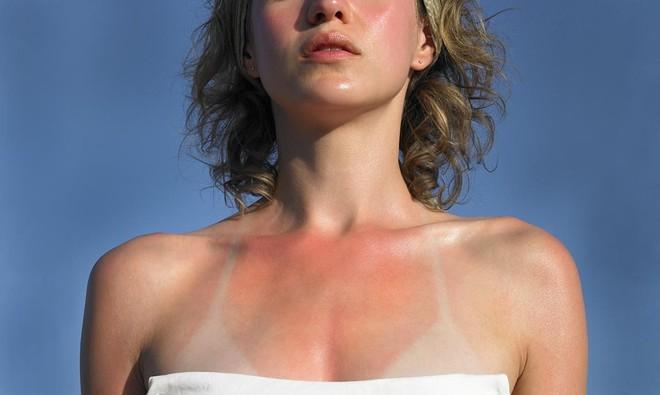 """Loạt ảnh cháy nắng """"dở khóc dở cười"""" và nỗi niềm của các cô nàng mê mặc bikini - Ảnh 2."""