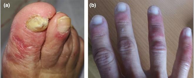 Bất ngờ: Bác sĩ BV Da liễu Trung ương chỉ ra 5 biểu hiện trên da có thể là dấu hiệu sớm của Covid-19 - Ảnh 2.