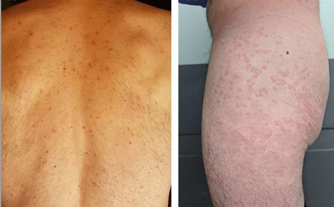 Bất ngờ: Bác sĩ BV Da liễu Trung ương chỉ ra 5 biểu hiện trên da có thể là dấu hiệu sớm của Covid-19 - Ảnh 3.