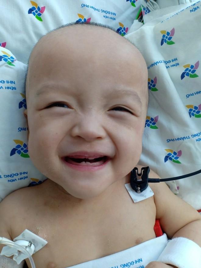 Hình ảnh vô cùng đáng yêu của bé Trúc Nhi, Diệu Nhi sau ca mổ tách 20 ngày - Ảnh 2.