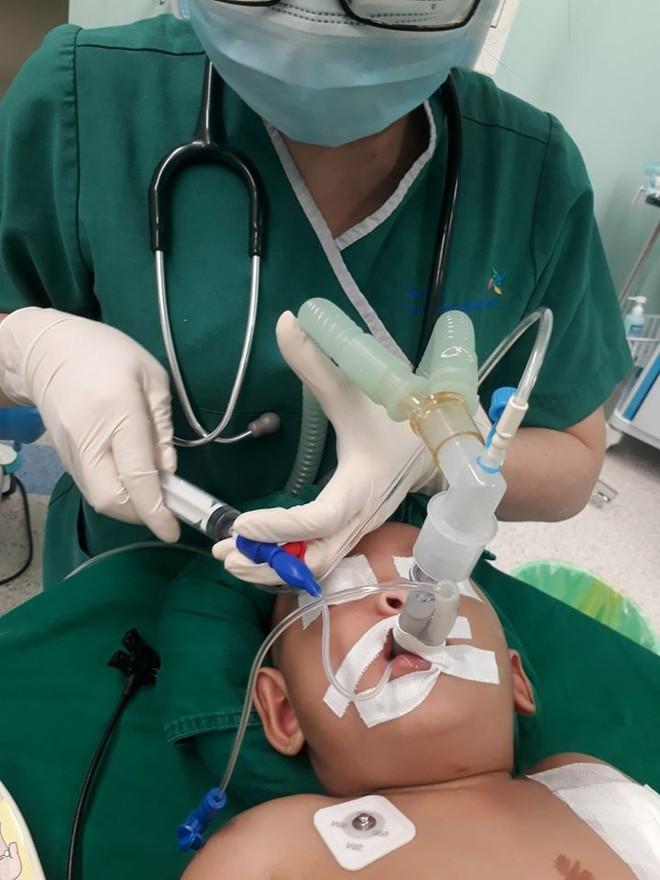 Diệu Nhi và Trúc Nhi đã được gây mê và giữ an toàn khi phẫu thuật như thế nào? - Ảnh 1.