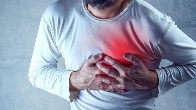 Các biến chứng tim mạch do nhiễm Coronavirus - Ảnh 2.