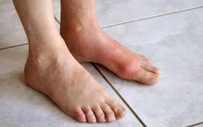 7 căn bệnh phổ biến có liên quan đến béo phì - Ảnh 7.