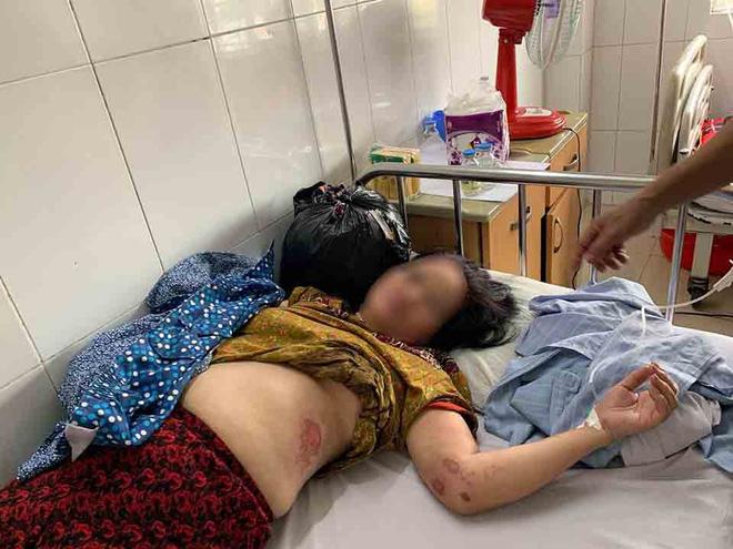 5 người phụ nữ tham gia vụ lột đồ, kéo lê nạn nhân trên đường làng bị đề nghị truy tố - Ảnh 1.