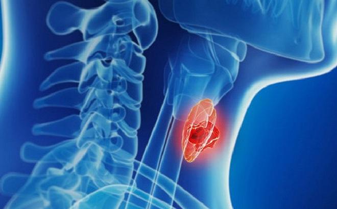 Ung thư tuyến giáp hoàn toàn có thể chữa khỏi nếu được chẩn đoán và điều trị đúng cách: Bác sĩ chuyên khoa chỉ ra dấu hiệu nhận biết sớm của căn bệnh này