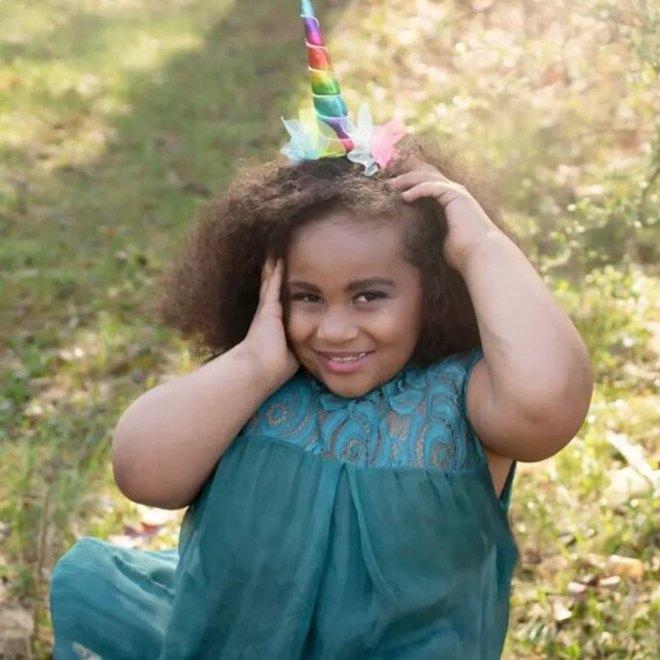 Nằm trong bụng mẹ thì không rõ giới tính, bé gái chào đời khiếm khuyết 2 chân nhưng con đường trưởng thành lại khiến ai cũng ngưỡng mộ - Ảnh 3.