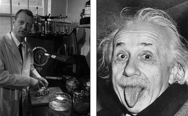 Chuyện ly kỳ về bộ não bị đánh cắp của thiên tài Einstein