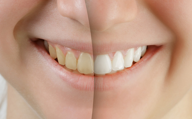 Răng vàng ố lâu ngày, miệng hôi khó chịu: Chỉ cần làm một việc này là khắc phục được ngay