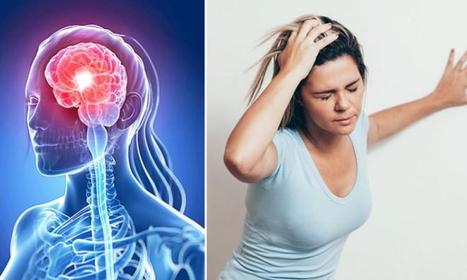Tai biến mạch máu não nháp: Dấu hiệu cảnh báo đột quỵ thật, nhiều người bỏ qua vì chủ quan - Ảnh 2.