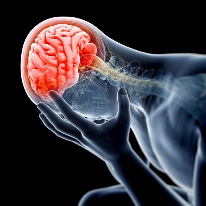 Tai biến mạch máu não nháp: Dấu hiệu cảnh báo đột quỵ thật, nhiều người bỏ qua vì chủ quan - Ảnh 1.