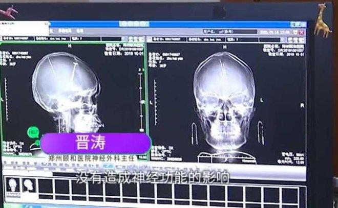 Phát hiện 2 chiếc kim cắm sâu trong não - ảnh 1