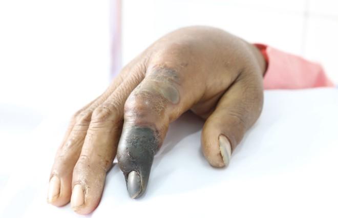 Bắt rắn hổ chúa dài 2,4m bò qua suối, người đàn ông bị rắn cắn suýt mất mạng phải tháo khớp ngón tay - Ảnh 1.