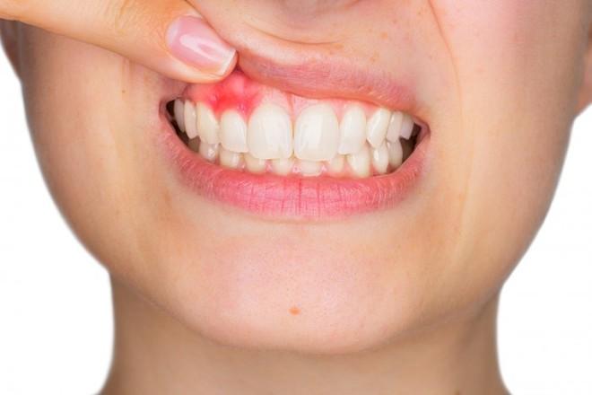 Viêm nướu răng nguy hiểm thế nào? - Ảnh 1.