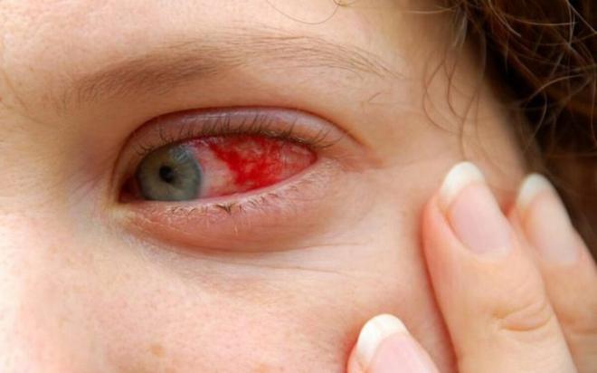 7 biến chứng nguy hiểm của sốt xuất huyết - Ảnh 3.