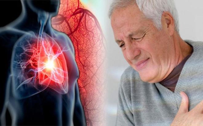 7 biến chứng nguy hiểm của sốt xuất huyết - Ảnh 4.